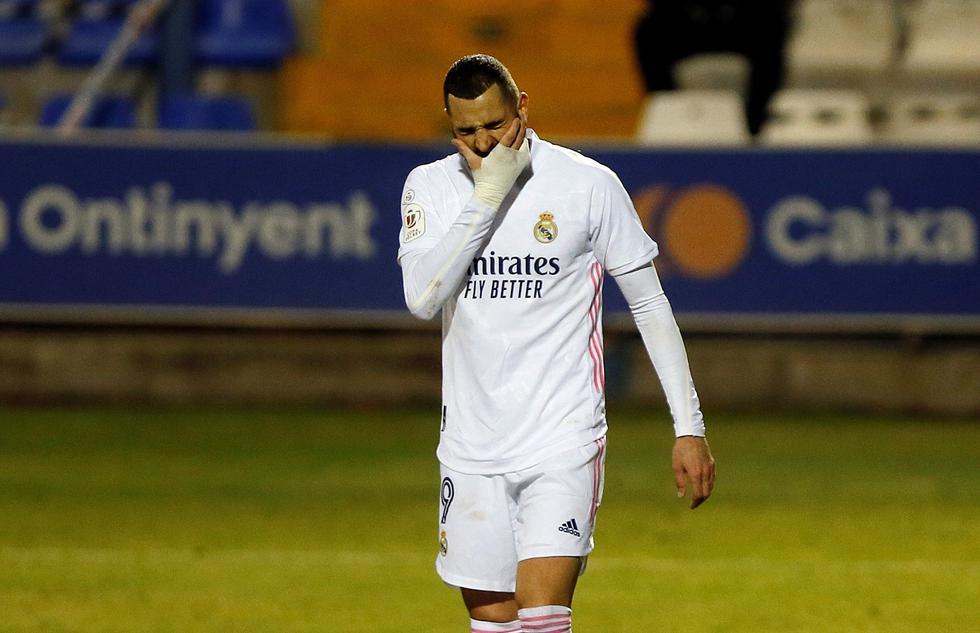 Díaz Ayuso confía en que el Madrid remonte la derrota ante el Alcoyano en el partido de vuelta